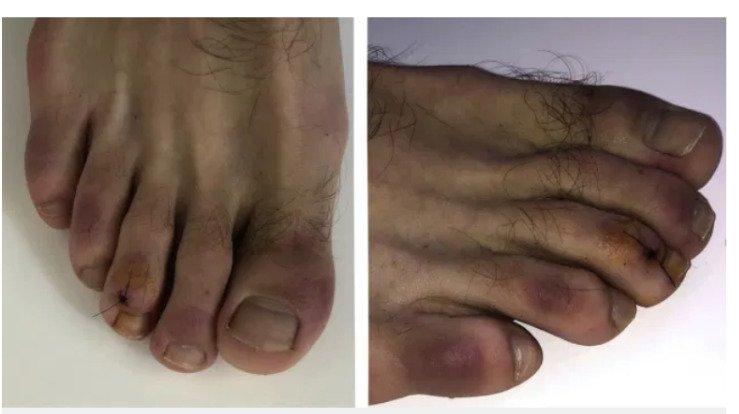 Covid Toe atau radang pada kaki menjadi gejala virus corona (Covid-19). - Metro