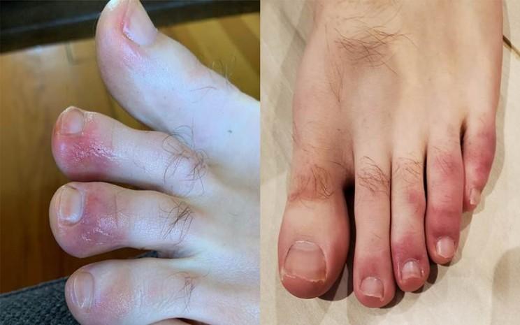 Ruam kaki