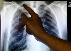Tekan Prevalensi Kanker Paru, Dokter Minta Kendalikan Konsumsi Rokok