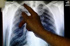 Tekan Prevalensi Kanker Paru, Dokter Minta Kendalikan…