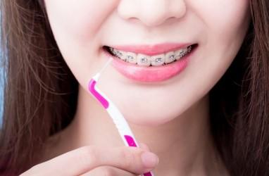 Ortodonti, Bukan Sekadar Pasang Kawat Gigi