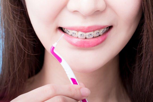 Ortodonti bisa mengubah bentuk gigi tonggos menjadi lebih rapi. - ilustrasi