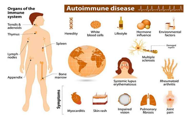 Gejala penyakit autoimun - www.niehs.nih.gov
