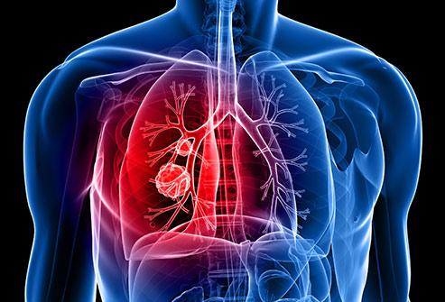 Cara mendeteksi kanker paru-paru. - WebMD