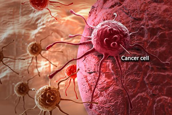 Sel kanker - Istimewa