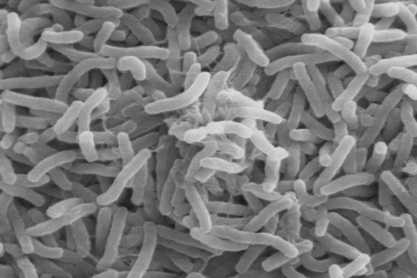 Mycobacterium leprae, bakteri penyebab kusta - Istimewa