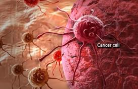 80 Persen Pasien Kanker Serviks Terdeteksi Sudah Stadium Lanjut