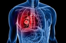 Kanker Paru Paling Banyak Membunuh Pasien Kanker