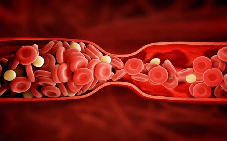 Ilustrasi pembekuan darah - istimewa