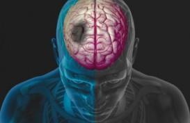 Penderita Covid-19 Berisiko Tinggi Terkena Stroke