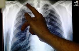 Penanganan Terganggu, Target Dunia Bebas TBC Bakal Meleset?