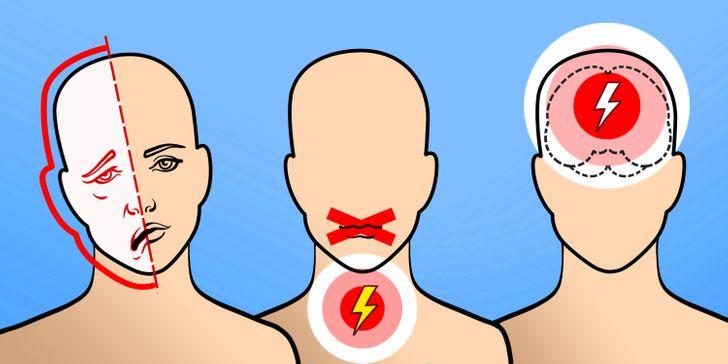 Pencegahan stroke bisa dilakukan sejak usia dini. - ilustrasi