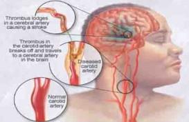 7 Penyebab Stroke di Usia Muda