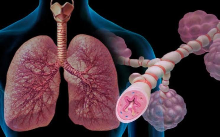 Ilustrasi asma - istimewa
