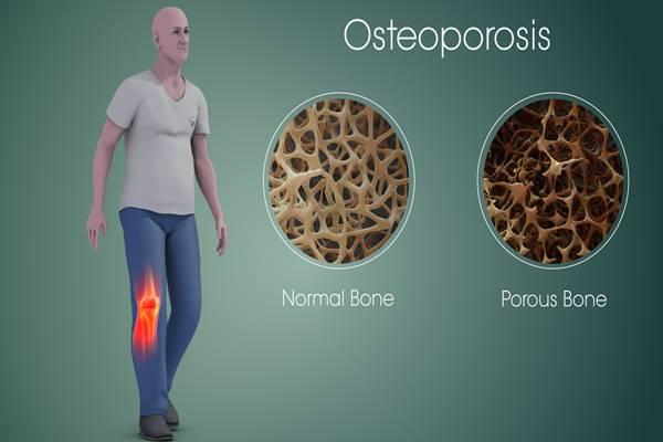 Ada beberapa makanan yang bisa mencegah pengeroposan tulang (osteoporosis) - Istimewa
