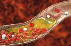 Simak Tanda-tanda Kolesterol Tinggi dari Kaki