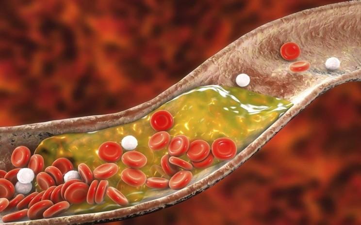 Ilustrasi kolesterol. Anda bisa meningkatkan asupan serat yang dapat mengikat kolesterol dan prekursornya dalam sistem pencernaan kemudian menyeretnya keluar dari tubuh sebelum masuk ke sirkulasi.  - istimewa