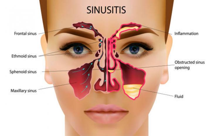 Ilustrasi sinusitis