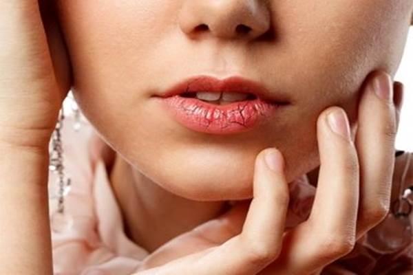 Bibir kering dan pecah menjadi gejala penyakit virus corona baru. - Istimewa