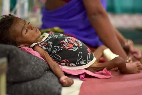 Ilustrasi gizi buruk. Seiring bertambahnya usia anak, kebutuhan nutrisinya juga meningkat, dan harus dipenuhi 9 Asam Amino Esensial (9AAE).  - Reuters