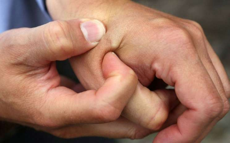 Ilustrasi kulit tangan.  - Bloomberg