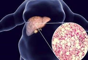 Kaki Bengkak Gejala Penyakit Sirosis Hati? Ini Penjelasan Ahli