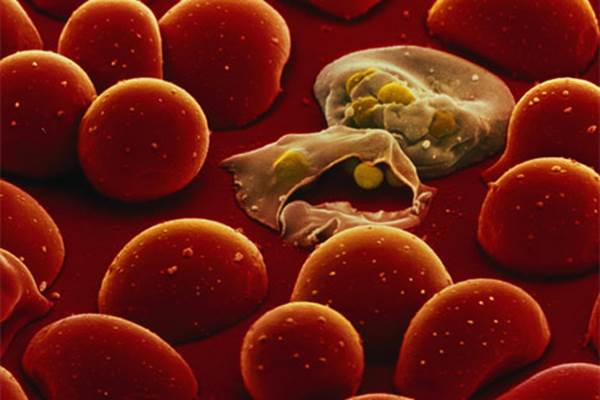 Parasit penyebab malaria - scitechdaily.com