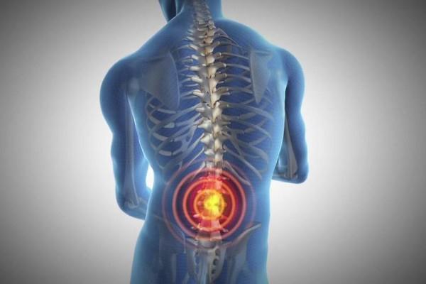 Ilustrasi sakit pinggang - Istimewa