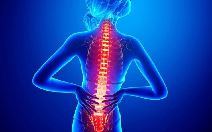 Sakit punggung - istimewa