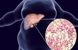 Gejala Sakit Liver Bisa Dilihat dari Kulit