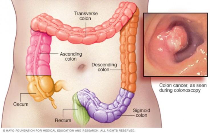 Kanker usus besar dapat terjadi di bagian mana pun dari usus besar.  - mayoclinic.org