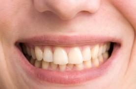 Penyebab Gigi Menjadi Kuning dan Cara Pencegahannya