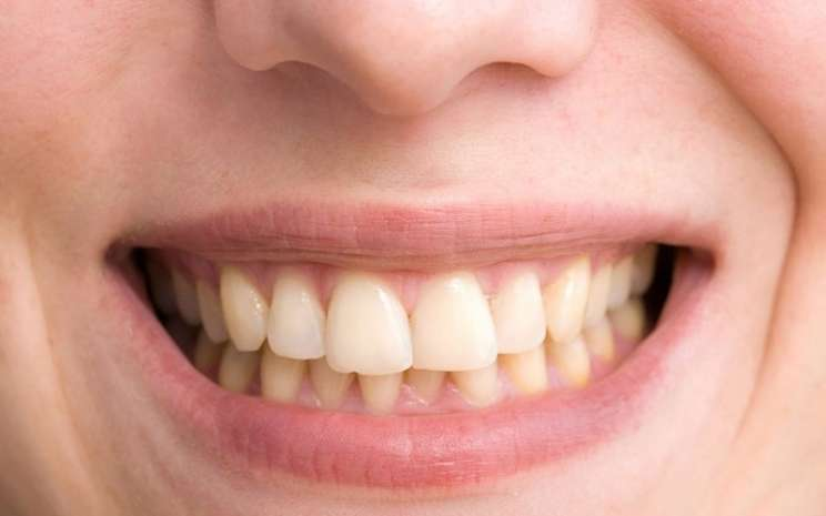 Gigi kuning - istimewa
