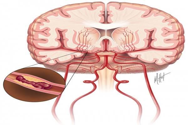 Ilustrasi stroke iskemik - strokecenter.org