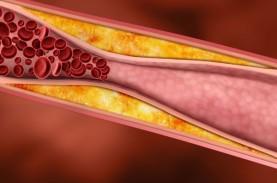 Riset Buktikan Sedikit Kasus Pembekuan Darah setelah…