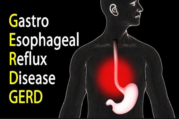 Ilustrasi penyakit lambung atau dikenal juga dengan GERD  - Bisnis/Youtube