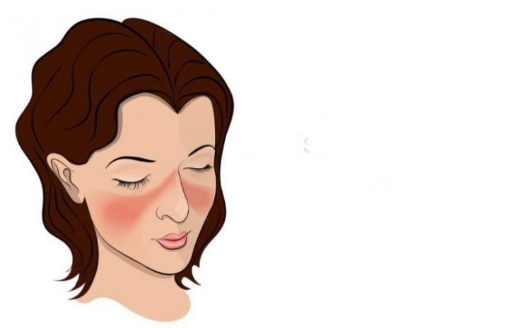 Lupus. anda lupus yang paling khas ialah ruam wajah yang menyerupai sayap kupu-kupu yang membentang di kedua pipinya.  - aoccb.com
