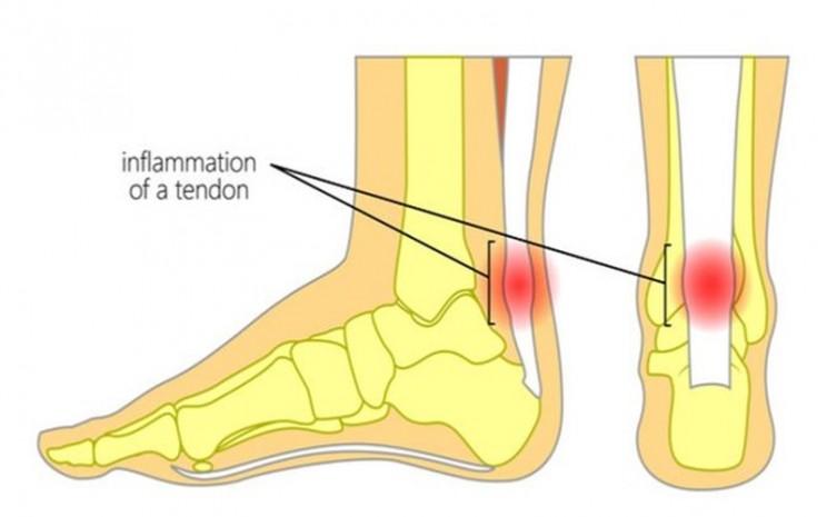 Pergelangan kaki bengkak