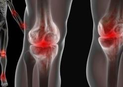Ini Bedanya Lupus dan Rheumatoid Arthritis